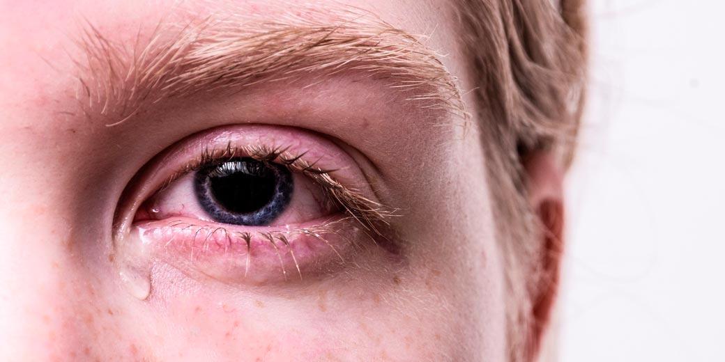 eye-pixabay