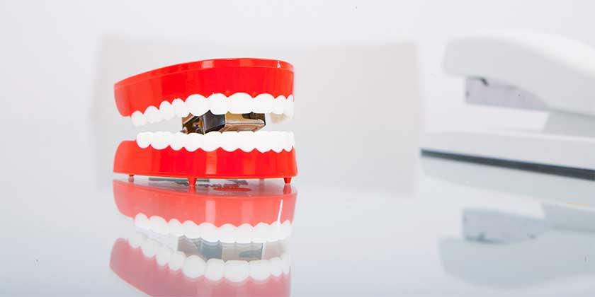 chatter-teeth-on-desk_SYE0WlRBi—-копия