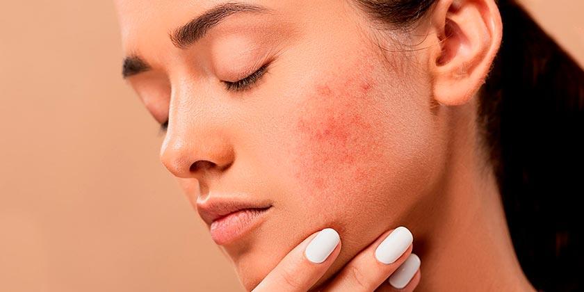 acne-girl-skin-pixabay